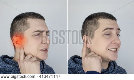 Before And After. On The Left, The Man Indicates Ear Pain, And On The Right, Indicates That The Ear