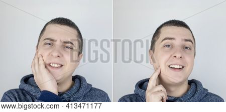 Before And After. On The Left, The Man Indicates Teeth Pain, And On The Right, Indicates That The Te