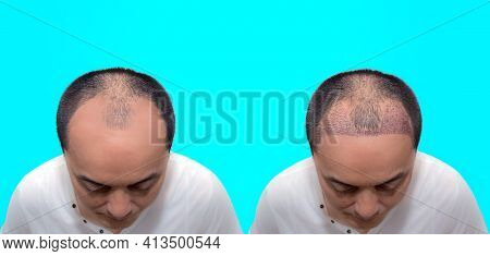 Close Up Top View Of A Man's Head With Hair Transplant Surgery With A Receding Hair Line. Before And