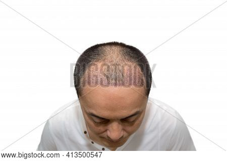 Close Up Top View Of A Man's Head With Hair Transplant Surgery With A Receding Hair Line. After Bald