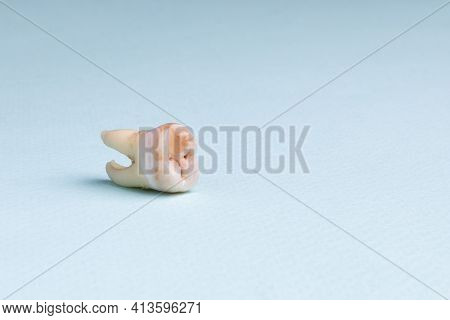 Pulled Out Wisdom Tooth With Filling And Caries On Blue Background. Close Up Of Bad Wisdom Tooth