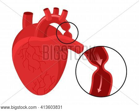 Aortic Coarctation - Aorta Narrowing Where The Ductus Arteriosus . Vector Illustration