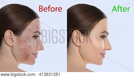 Young Woman Before And After Cosmetic Procedure On Light Background
