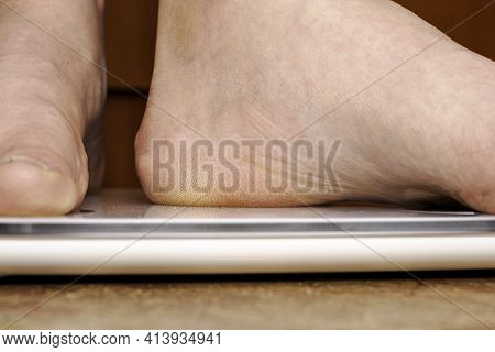 A Person Weighs Himself On A Floor Electronic Scale Puts His Foot On The Scale