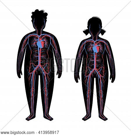 Human Arterial And Venous Circulatory System In Obese Child Body. Blood Vessels Diagram In Overweigh