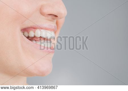 Close-up Portrait Of A Woman With A Plastic Transparent Retainer. A Girl Corrects A Bite With The He