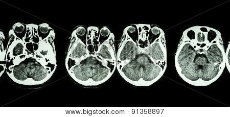 Ct Scan Of Brain And Base Of Skull