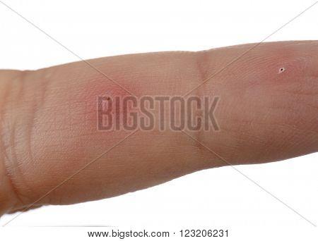 Splinter in Finger Close up