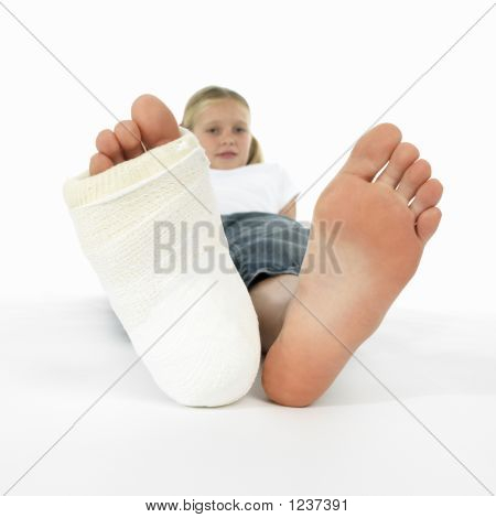 Menina com uma perna quebrada