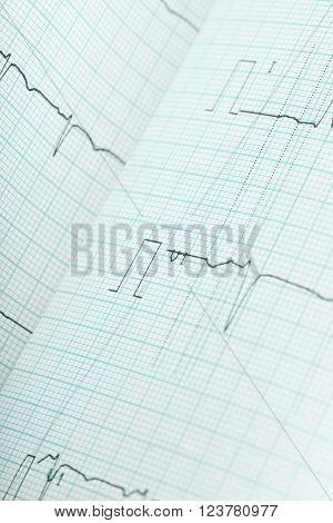 The ECG macro health care background image