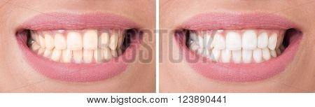 Perfect woman smile before and after bleaching or whitening concept