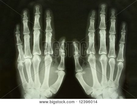x-ray picture of the palms