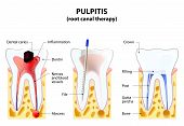 Pulpitis. root canal therapy. Infected pulp is removed from the tooth and the space occupied by it is cleaned and filled with a gutta percha. Post inserted to support crown poster