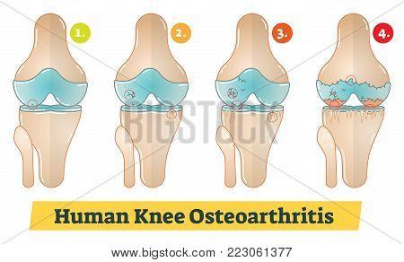 Human Knee Osteoarthritis simple vector diagram illustration