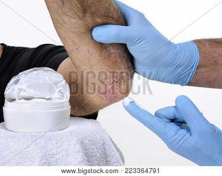 The dermatologist with his hands protected by gloves treats with the cream the inflammation in the left elbow of an adult man suffering from psoriasis
