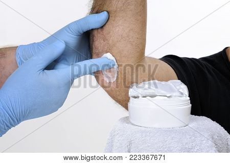 The dermatologist with his hands protected by gloves treats with the cream the inflammation of the right elbow of an adult man with psoriasis