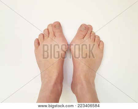 Hallux valgus, feet isolated deformed, curvature  ache, health care