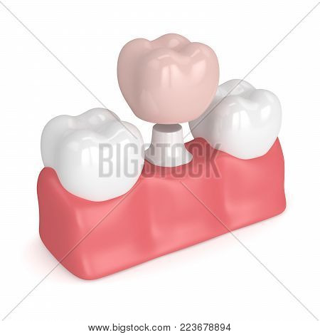 3d render of teeth  in gums with dental crown restoration over white background