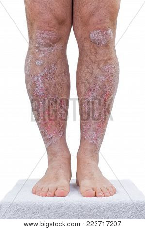 Psoriasis is a chronic inflammatory disease of the skin.Details of the legs.