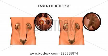 vector illustration of a laser lithotripsy and removal of sand from the kidneys