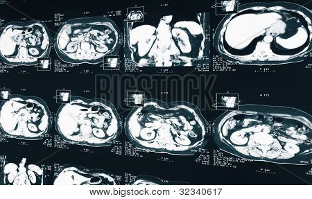 MRI.  X-ray of the human kidney