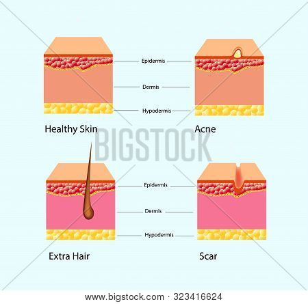 Vector Illustration Of Types Of Skin Problems Isolated