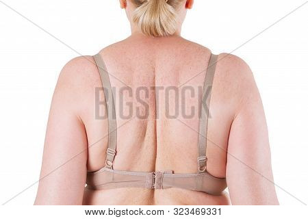 Fat Woman's Back Isolated On White Background