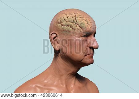 An Elderly Person With Highlighted Brain