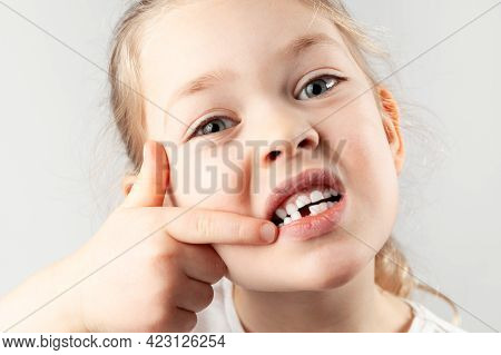 Baby Tooth Fell Out. Portrait Of Small Girl With A Missing First Tooth.