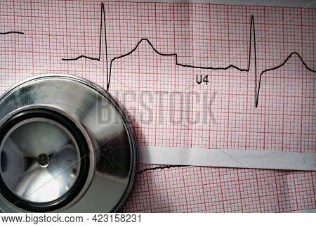 Stethoscope head lying at cardiogram paper, cardiogram sheet, cardiology conceptual.