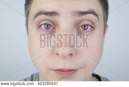Close Up Of Two Annoyed Red Blood Eyes Of Male Affected By Conjunctivitis Or After Flu, Cold, Allerg