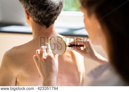 Dermatologist Checking Skin Allergy And Pigment Problems