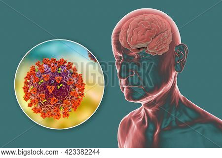 Covid-19 And Dementia. Neuropsychiatric Sequelae Of Covid-19. 3d Illustration. Infectious Etiology O