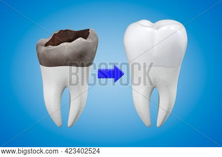 The Concept Of Prosthetics For A Damaged Tooth With A Metal-ceramic Crown. Carious Tooth And Dental