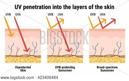 Uv Penetration Into The Layers Of The Skin. Infographic Of Sunscreen Protection Against Uva, Uvb Ray