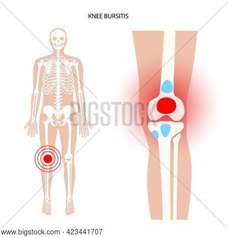 Knee Bursitis Inflammation. Inflamed Bursa In Human Leg. Patella, Kneecap Disease, Pain And Deformit