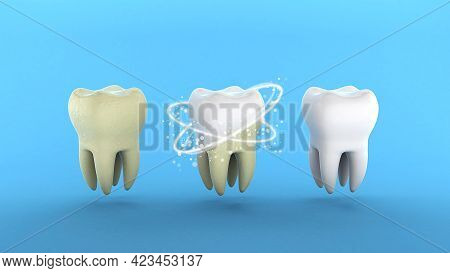 Teeth Whitening. Tooth With Tartar And After Ray Whitening. Blue Background. 3d Render