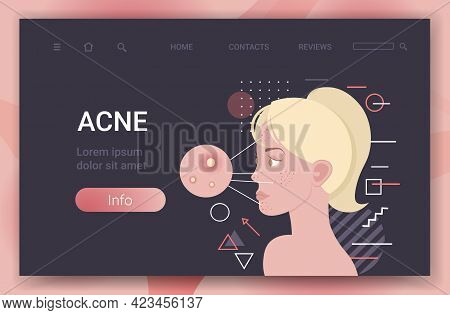 Acne On Woman Face Pore Comedones Cosmetology Skincare Problems Treatment Skin Disease Concept Portr