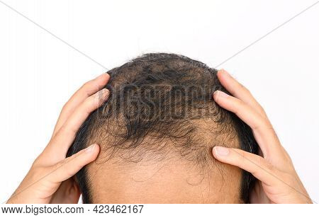 Close Up Of Male-pattern Baldness With White Copy-space, Typically Appears First At The Hairline Or