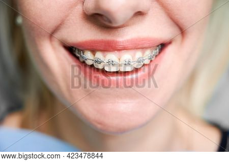 Close Up Of Woman With Charming Smile Demonstrating White Teeth With Orthodontic Brackets. Female Pa