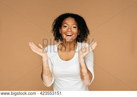 People With Vitiligo. Positive Woman With Vitiligo And Abnormal Skin Spots And Wow Emotions On Her F