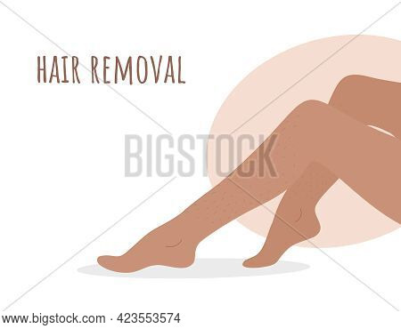 Hair Removal. Laser And Wax Epilation Methods. Perfect Smooth Female Legs. Vector Illustration In Fl