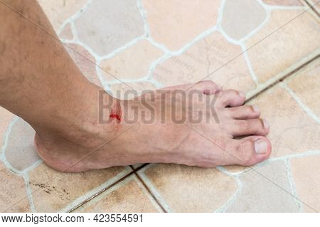 Injuries From Falling In The Garden. A Man Showing A Lesion On His Foot. Arm Is Wound From A Knife.