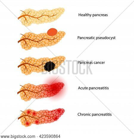 Pancreas Disease Concept. Acute And Chronic Pancreatitis, Pancreatic Cancer And Pseudocyst. Pain And