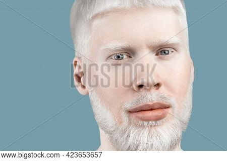 Albinism Concept. Portrait Of Young Bearded Albino Man With White Hair, Pale Skin And Blue Eyes, Tur
