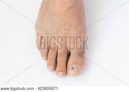 Purple Bruise Under Toe Nail On White Background. Fingernail Hematoma After Running Or Walking In Ti