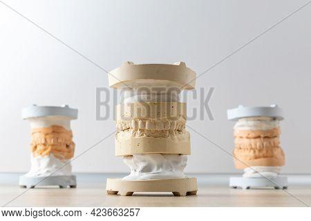 Dental Model Of Human Teeth Made Of Gypsum. Dental Impression