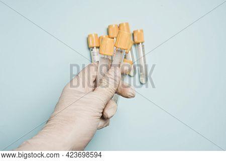 Medecin Test Tubes For Labaroth Studies And Blood Tests.medical Equipment.