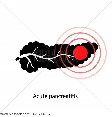Pancreas Disease Logo, Acute Pancreatitis. Medical Appointment And Treatment In Clinic. Pain And Inf