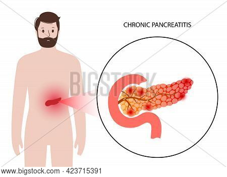 Pancreas Disease Logo, Chronic Pancreatitis. Medical Appointment And Treatment In Clinic. Pain And I